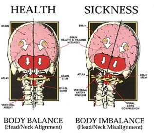 The effects of spinal misalignment can result in illness