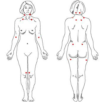 Tender Points Associated With Fibromyalgia